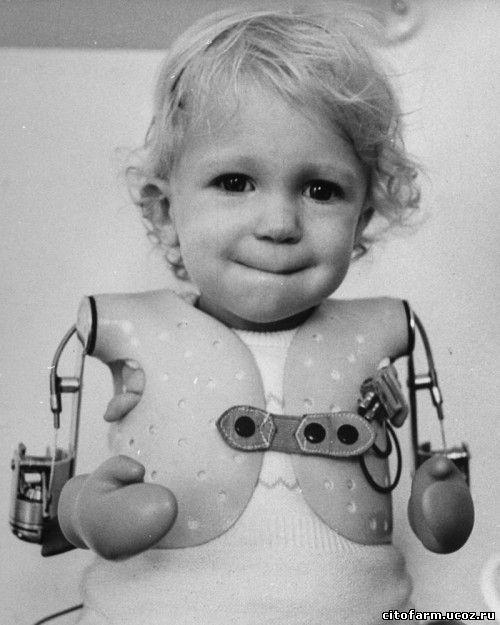 дитя без талидомида